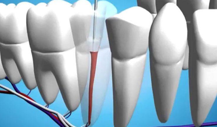 How Can I Get The Best Root Canal Dentist Near Me ...